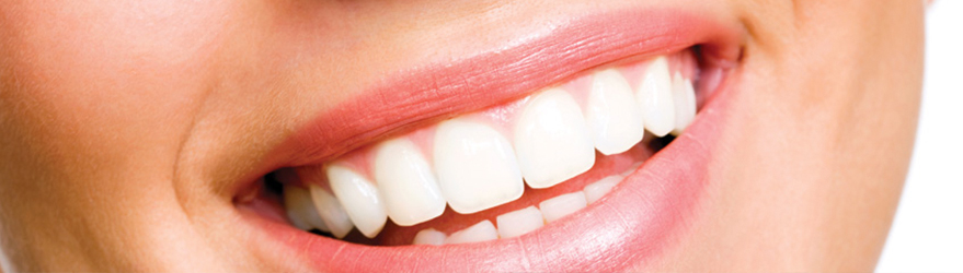 Checkup Teeth Whitening Fillings Root Canal Implants Scale