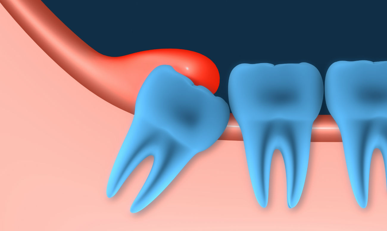 Pericoronitis Gum Infection Associated With Wisdom Teeth D4dentist