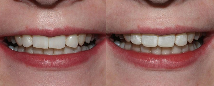 Repairing Chipped Front Teeth with Teeth Bonding