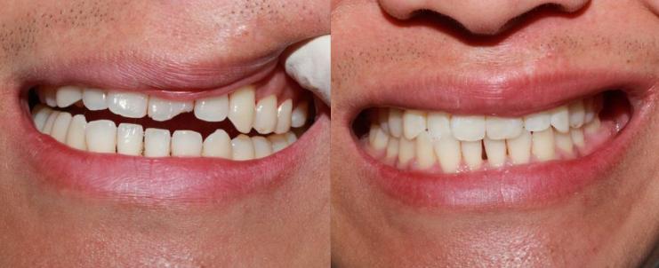 Teeth Bonding to Repair Broken Tooth