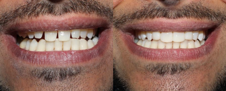 Minimally invasive dentistry at its best! A drill was not lifted for this case, the teeth were not damaged at all.