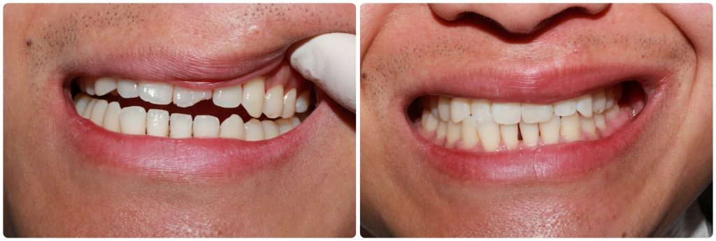 dental bonding dublin d4 dentist