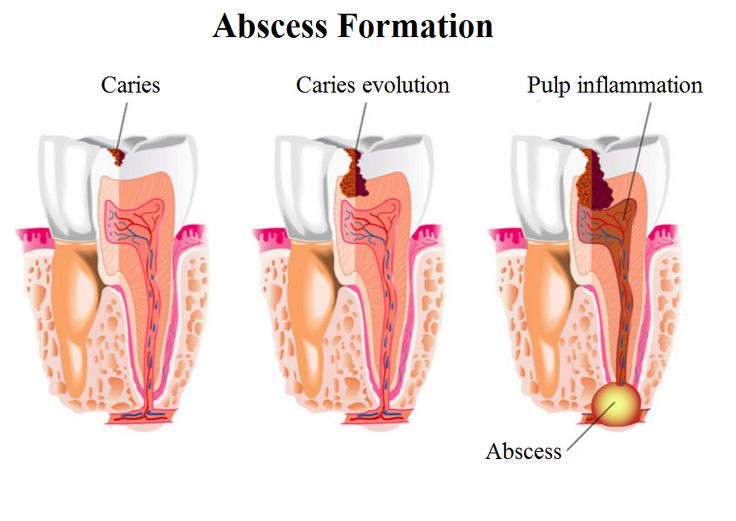 abscess formation and treatment