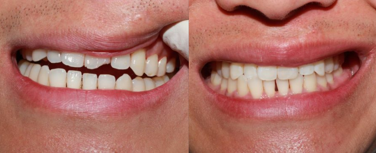 Teeth Bonding to Repair Broken Tooth